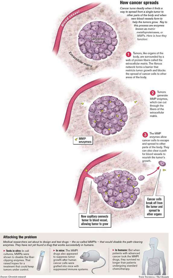 How Cancer Spreads. Chronicle graphic by Todd Trumbull