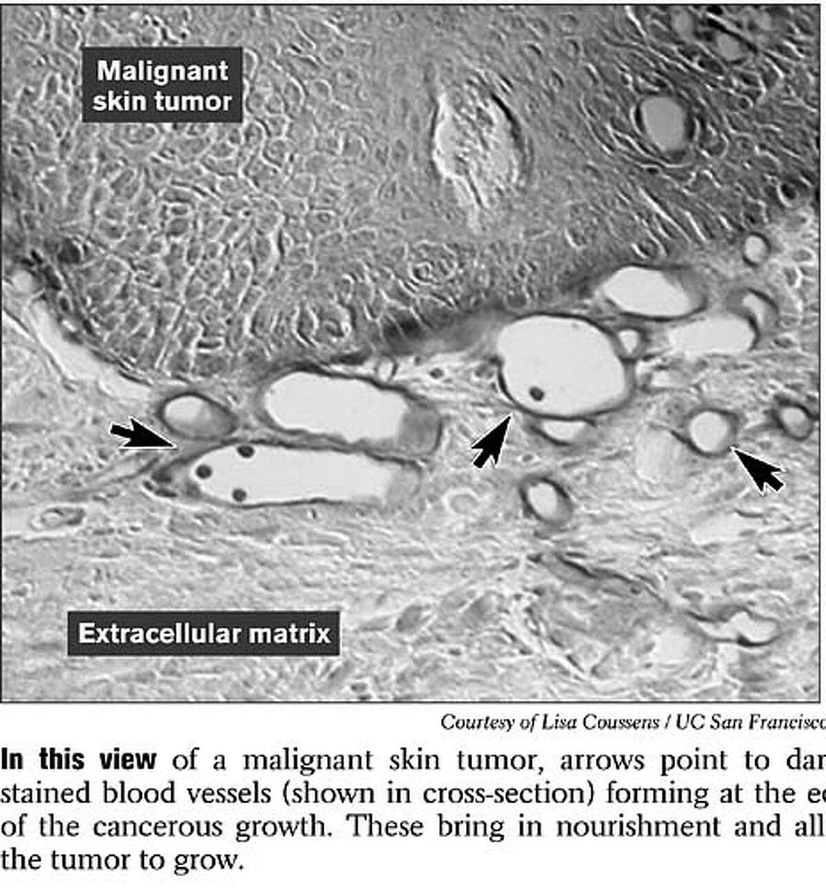 Malignant Skin Tumor. Photo courtesy of Lisa Coussens, UCSF