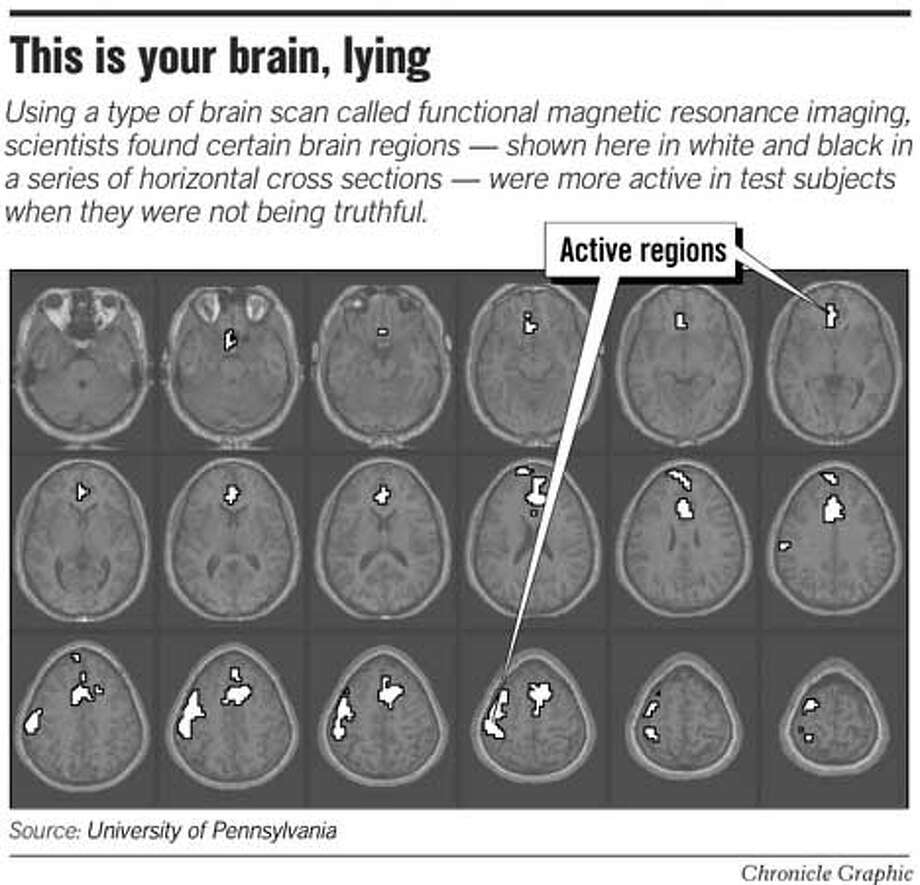 This Is Your Brain, Lying. Chronicle Graphic