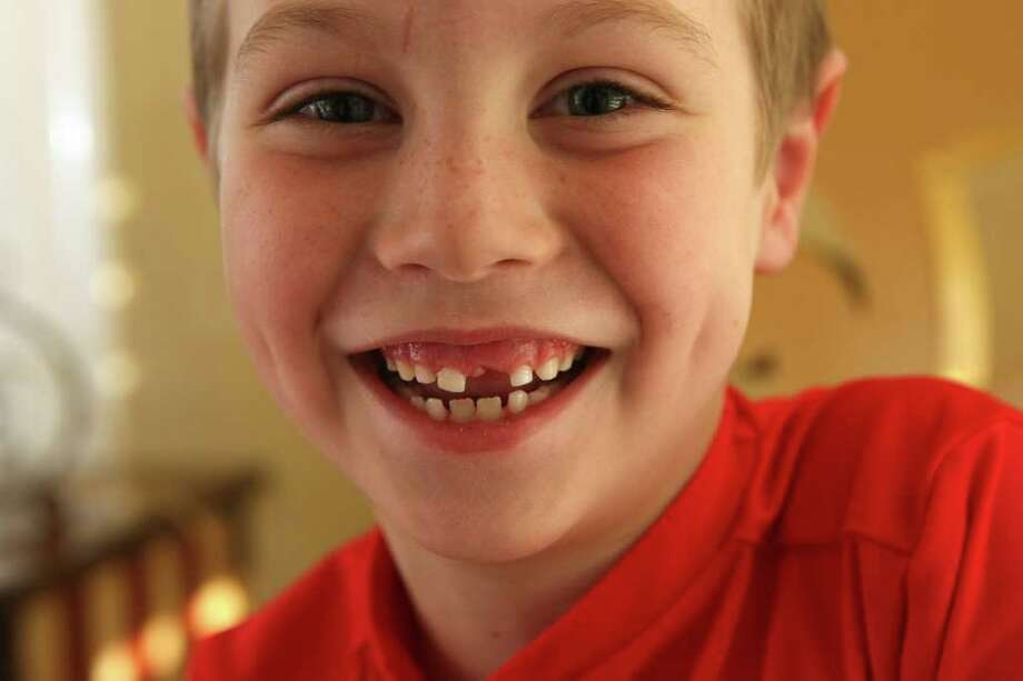 Blake Johnson, 6, had a very loose front tooth pulled during his six-month checkup at the dentist. Photo: Helen L. Montoya, San Antonio Express-News / ©2012 San Antonio Express-News