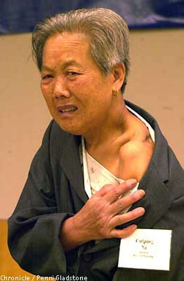 Cuiping Ni age 75 years who lost most of her family during the Rape of Nanking crys as she shows us her bullet wound to her shoulder. She spoke at a protest conference entitled 50 years of Denial, which is aimed at getting Japan to admit to and apologize for its war time atrocities. took place at the Main LIbrary San Francisco. CHRONICLE PHOTO BY PENNI GLADSTONE Photo: Penni Gladstone