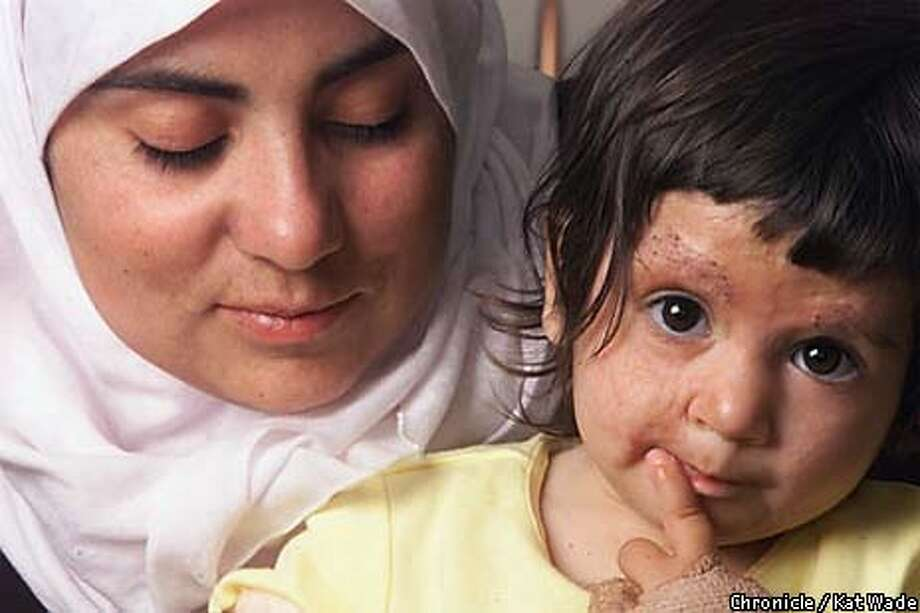 Samira Khatib of the West Bank village of Khilajan held her 18-month-old daughter, Amal, who has received treatment in San Francisco for severe burns. Chronicle Photo by Kat Wade