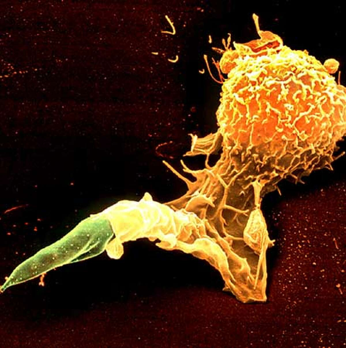 SCIENCE23/C/20APR01/SC/HOCOLORED SCANNING ELECTRON MICROGRAPH (SEM) OF A MACROPHAGE WHITE BLOOD CELL ENGULFING A LEISHMANIA MEXICANA PROTOZOAN. CREDIT: JUERGEN BERGER, MAX-PLANCK INSTITUTE/SCIENCE PHOTO LIBRARY