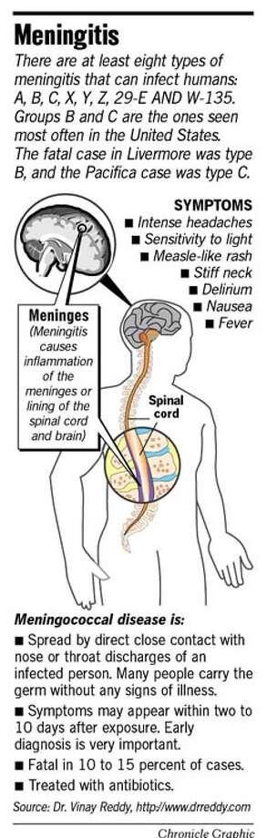Meningitis. Chronicle Graphic