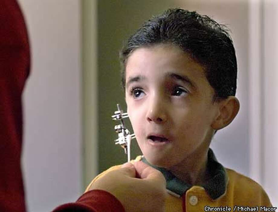Mustafa Hama is being treated at Lucile Packard Children's Hospital (Stanford), for a birth defect that deformed his jaw. A special device, was surgically implanted to correct the alignment of his jawbone a month ago. Chronicle Photo by Michael Macor