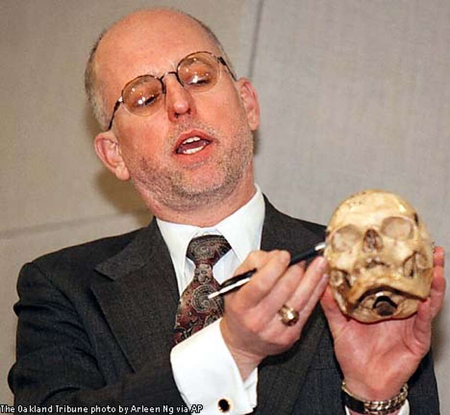 At a news conference, Dr. Gregory Schmunk, with the Santa Clara County Coroner's Office, held a skull similar in size and shape to Xiana's. Oakland Tribune by Arleen Ng via Associated Press