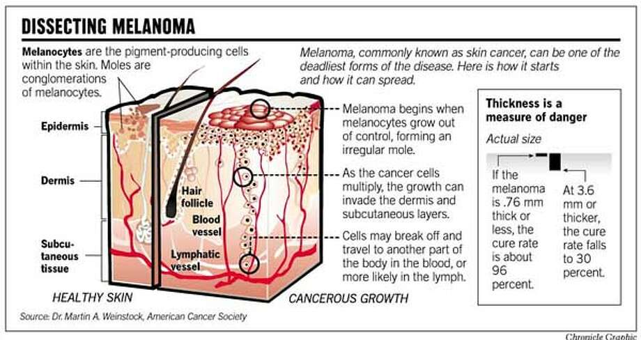 Epidermis Dermis Melanocytes are the pigment-producing cells within the skin. Moles are conglomerations of melanocytes. Blood vessel Lymphatic vessel Hair follicle Melanoma begins when melanocytes grow out of control, forming an irregular mole. Thickness is a measure of danger Subcu- taneous tissue Melanoma, commonly known as skin cancer, can be one of the deadliest forms of the disease. Here is how it starts and how it can spread. Cells may break off and travel to another part of the body in the blood, or more likely in the lymph. As the cancer cells multiply, the growth can invade the dermis and subcutaneous layers. Source: Dr. Martin A. Weinstock, American Cancer Society DISSECTING MELANOMA HEALTHY SKIN CANCEROUS GROWTH Actual size Chronicle Graphic If the melanoma is .76 mm thick or less, the cure rate is about 96 percent. At 3.6 mm or thicker, the cure rate falls to 30 percent. John Blanchard Printed by T-Bone at 8:30:40 PM, 8/18/2000 FILE: (in Deadline) PUB DATE: 8/19/00 PAGE: A4 EDITION: 5s w/McCain CHRONICLE MAKEUP Pub date: 8/19/00 Page: A4 Edition: 5s Photo: John Blanchard