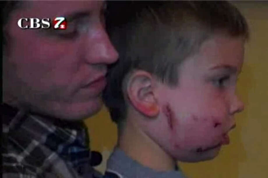 Rivers Hobbs, 6, was attacked by a mountain lion at Big Bend National Park in Texas.   CBS7