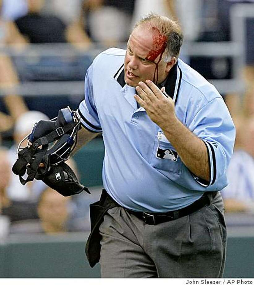 Home plate umpire Brian O'Nora runs toward the Kansas City Royals' dugout after a broken bat from Royals' Miguel Olivo struck him in the head in the second inning on Kansas City's baseball game against the Colorado Rockies on Tuesday, June 24, 2008, in Kansas City, Mo. O'Nora left the game. (AP Photo/The Kansas City Star, John Sleezer) ** MAGS OUT NO SALES ** Photo: John Sleezer, AP Photo
