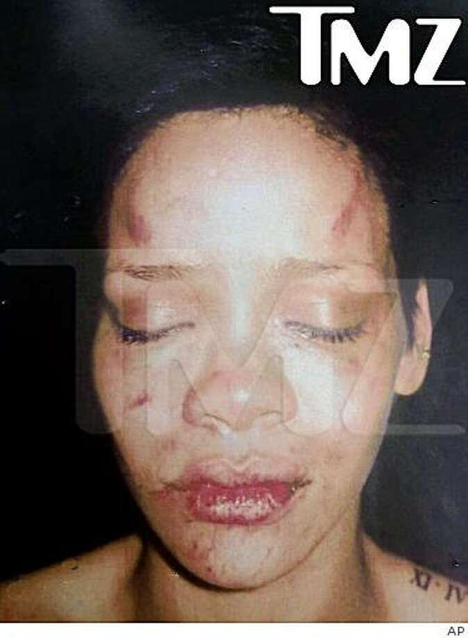 "This undated photo provided by TMZ of pop star Rihanna was according to TMZ, ""taken after Chris Brown allegedly beat her."" Rihanna was reportedly involved in a domestic dispute with boyfriend Chris Brown last week that resulted in his arrest and booking on charges of making criminal threats. A police statement said the woman who reported the incident was injured, and identified Brown as her attacker. Charges have not yet been filed, and neither Brown nor Rihanna has come forth to comment on the incident. (AP Photo/TMZ) Photo: AP"