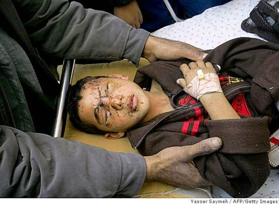 """Palestinian Louai Sobeh, 10, is treated for burns at Shifa hospital in Gaza City on January 12, 2009. Palestinian doctor working in Gaza City Dr Yusef Abu Rish told AFP that at least 55 people were injured early yesterday by white phosphorous shells, banned under international law for use against civilians, but permitted for creating smokescreens. """"These people were burned over their bodies in a way that can only be caused by white phosphorous,"""" said Abu Rish. An Israeli military spokeswoman denied the claims. """"There is no use of white phosphorous. Everything we use is according to international law,"""" she said. AFP PHOTO /YASSER SAYMEH   (Photo credit should read YASSER SAYMEH/AFP/Getty Images) Photo: Yasser Saymeh, AFP/Getty Images"""