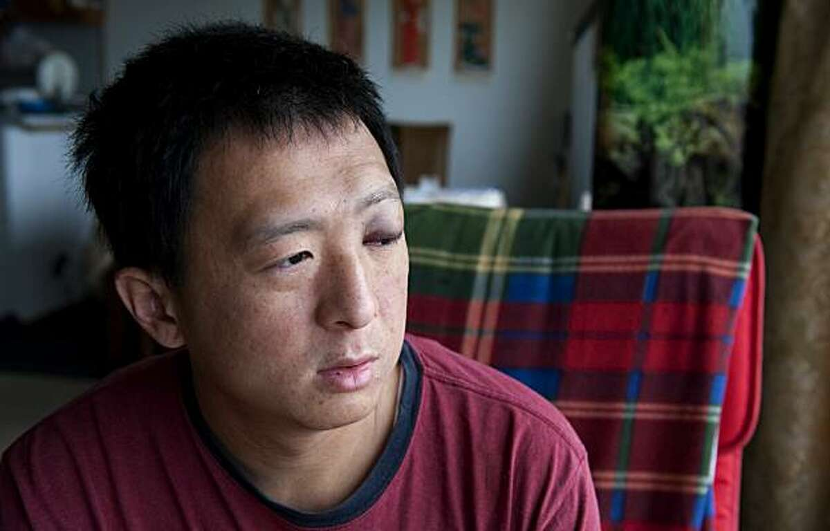 Jin Cheng Yu sits at home in his living room in San Francisco, Calif. on Saturday, April 17, 2010. Yu and his father, Tian Sheng, were beaten by attackers on Friday, April 16, 2010 in Oakland, Calif.