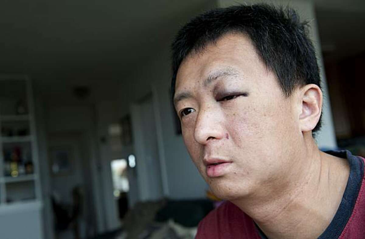 Jin Yu sits at home in his living room in San Francisco, Calif. on Saturday, April 17, 2010. Yu and his father, Tian Sheng, were beaten by attackers on Friday, April 16, 2010 in Oakland, Calif.