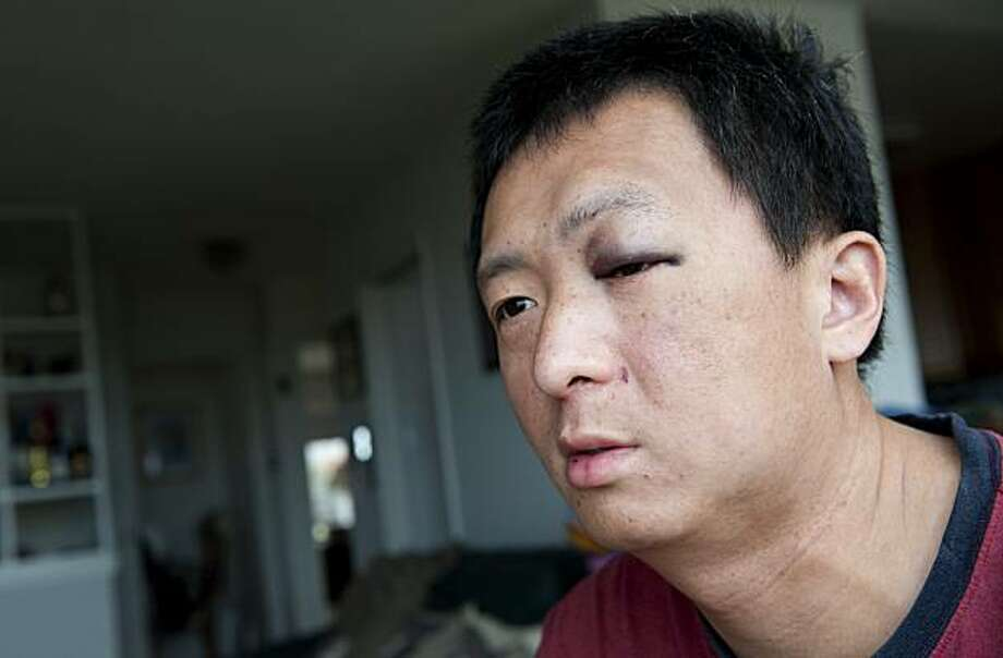 Jin Yu sits at home in his living room in San Francisco, Calif. on Saturday, April 17, 2010.  Yu and his father, Tian Sheng, were beaten by attackers on Friday, April 16, 2010 in Oakland, Calif. Photo: Adam Lau, Special To The Chronicle