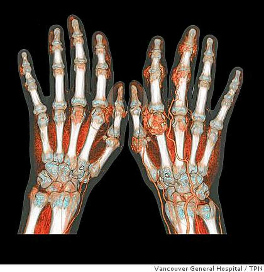A CT scan of hands shows vivid detail. CT scans have become a standard diagnostic procedure for a variety of ailments, but they expose patients to far more radiation than other tests. Photo: Vancouver General Hospital, TPN