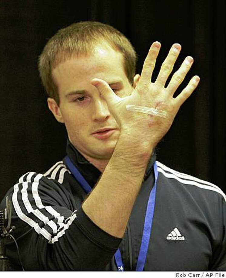 Paul Hamm shows off his hand during a news conference before the men's first day of competition for the U.S. Olympic gymnastics trials in Philadelphia. Associated Press file photo by Rob Carr Photo: Rob Carr, AP File