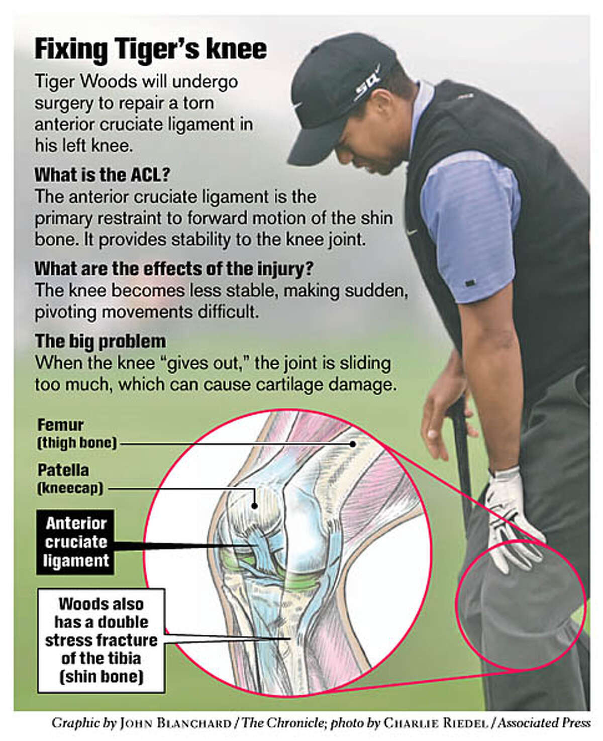 Fixing Tiger's knee. Chronicle graphic by John Blanchard