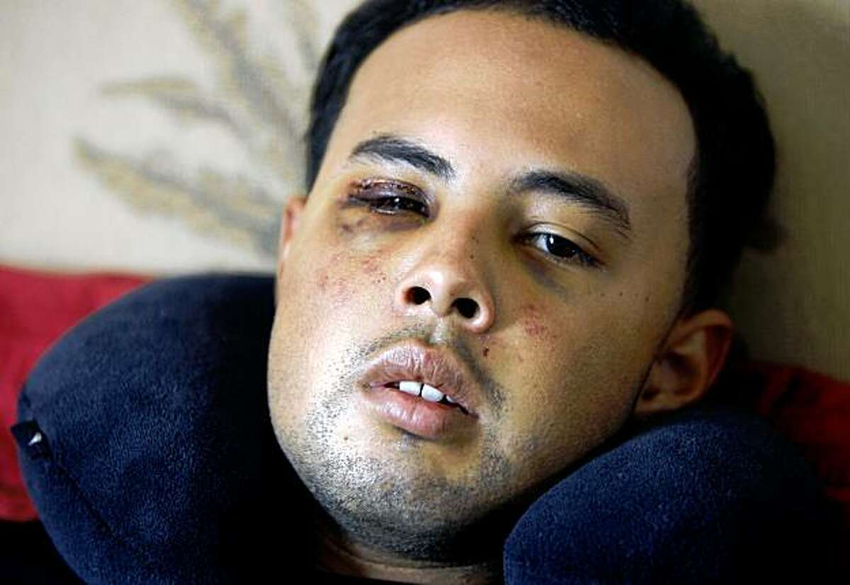 Chris Borgzinner recuperates at his home in San Francisco, Calif., on Thursday, Oct. 8, 2009 after several assailants beat him up while riding on the number 9 San Bruno Muni bus last Monday.