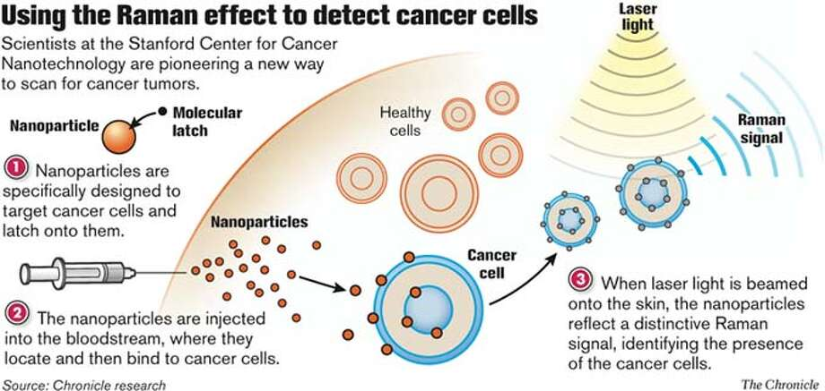 Using the Raman effect to detect cancer cells. Chronicle Graphic