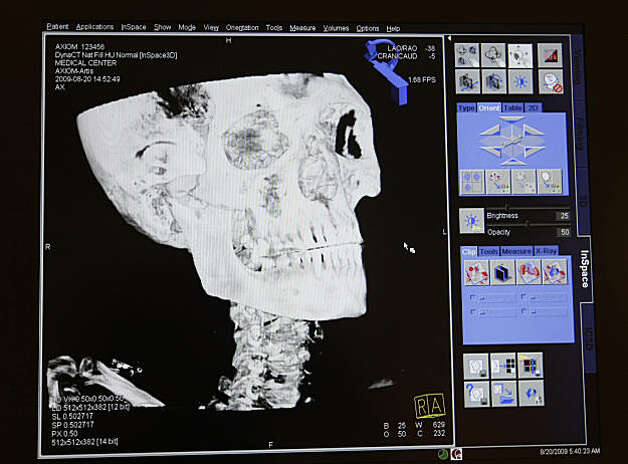 A copy of a CT-scan of a 2000 year old mummy of an Egyptian prince, Thursday August 20, 2009, in Palo Alto, Calif. Photo: Lacy Atkins, The Chronicle