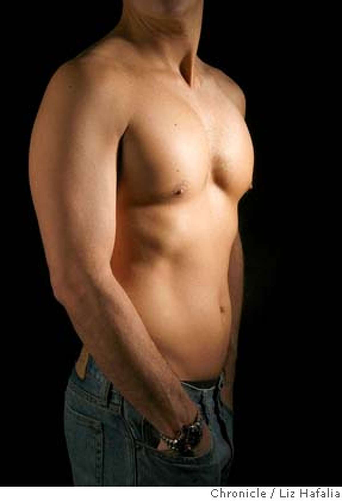 Pectoral implants were received in this man two years ago.