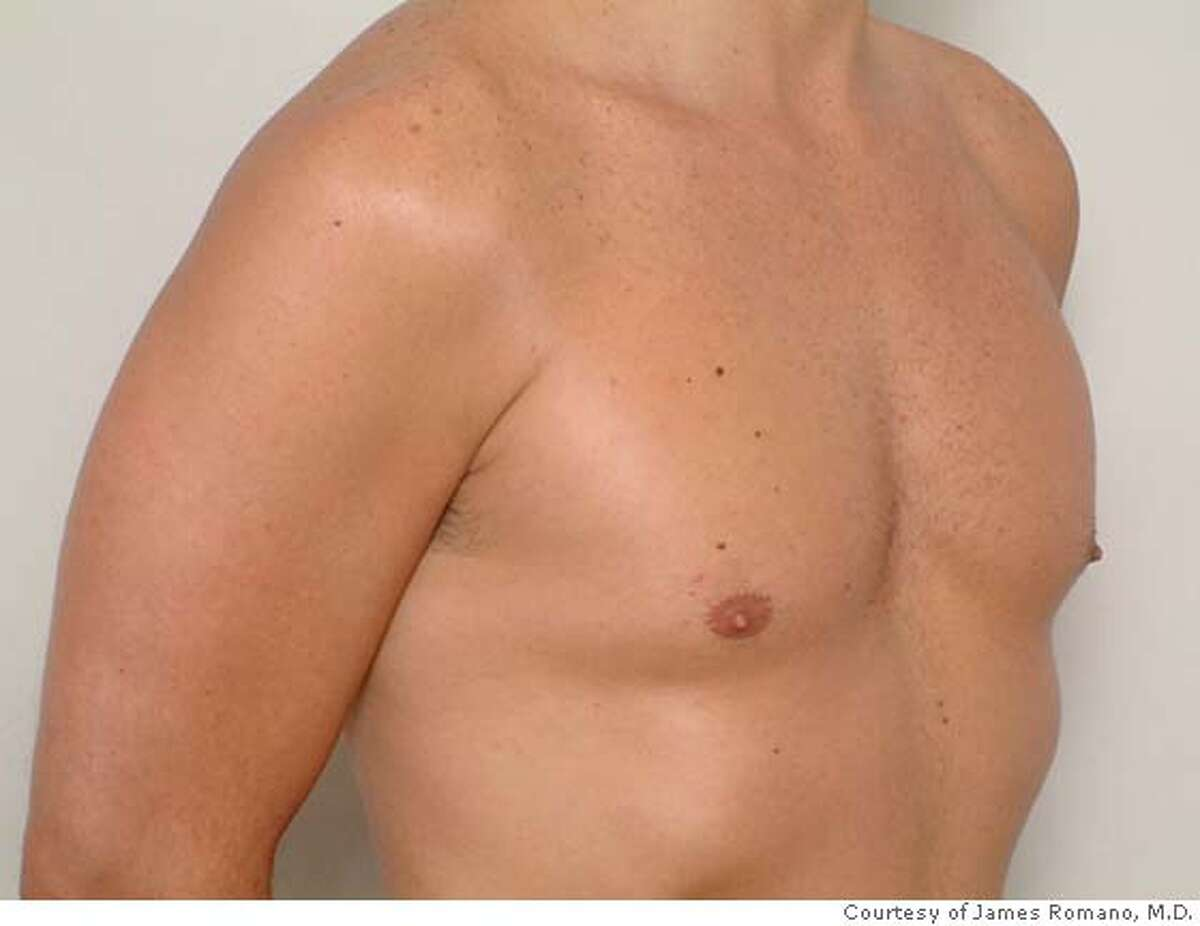 Before (L) and after shots of pectoral implants.
