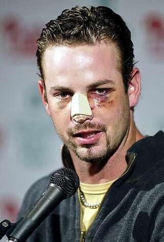 Philadelphia Phillies' Aaron Rowand answers questions from the press Monday, May 15, 2006, in Philadelphia. Rowand ran into the wall breaking his nose while making a catch on a hit by New York Mets' Xavier Nady on Thursday. Photo: H. Rumph Jr, AP