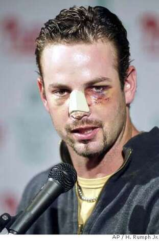 Philadelphia Phillies' Aaron Rowand answers questions from the press Monday, May 15, 2006, in Philadelphia. Rowand ran into the wall breaking his nose while making a catch on a hit by New York Mets' Xavier Nady on Thursday. (AP Photo/H. Rumph Jr.) EFE OUT Photo: H. RUMPH JR