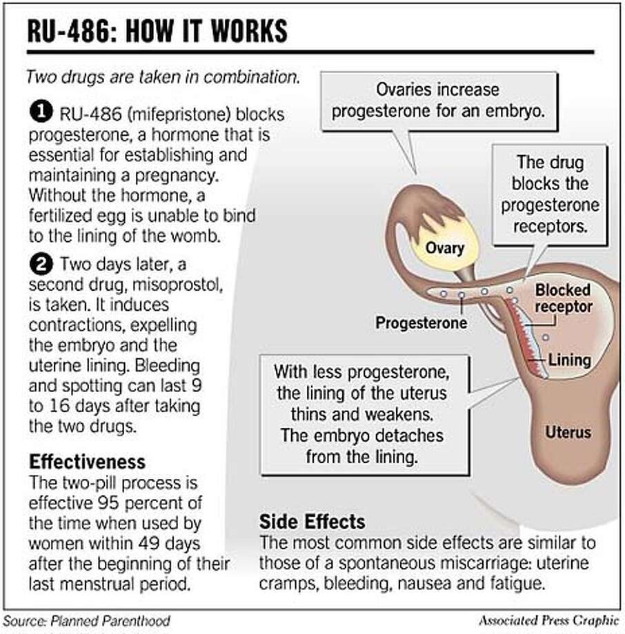 RU-486: How it Works. Associated Press Graphic