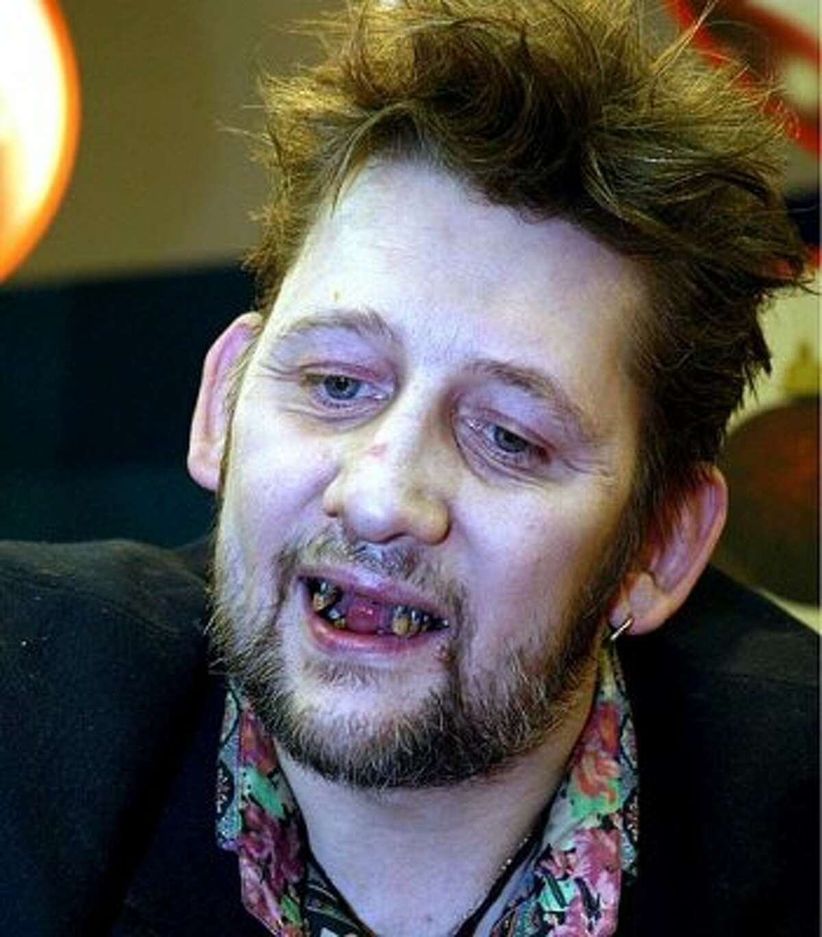 You don't have to look like Mick Jagger circa 1971 to marry a model. Meet some of the guys who have overcome some very obvious physical obstacles to achieve stardom, hang out with groupies and make millions.Shane Macgowan. The Pogues frontman shrewdly saved millions on dental bills. (AP)