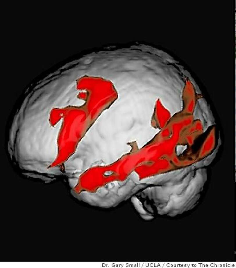MRI image of an older brain reading book-type text on a screen. Study by Dr. Gary Small, UCLA. Photo: Dr. Gary Small / UCLA, Courtesy To The Chronicle