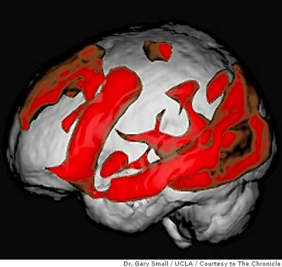 MRI image of an older brain during a web search. From study conducted by Dr. Gary Small, UCLA.
