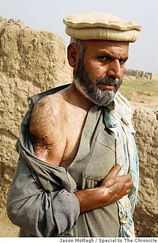 Muhammad Khan, a refugee from Bajaur, who nearly lost his arm in> a shell attack, Kacha Gari camp, Peshawar. Photo: Jason Motlagh, Special To The Chronicle
