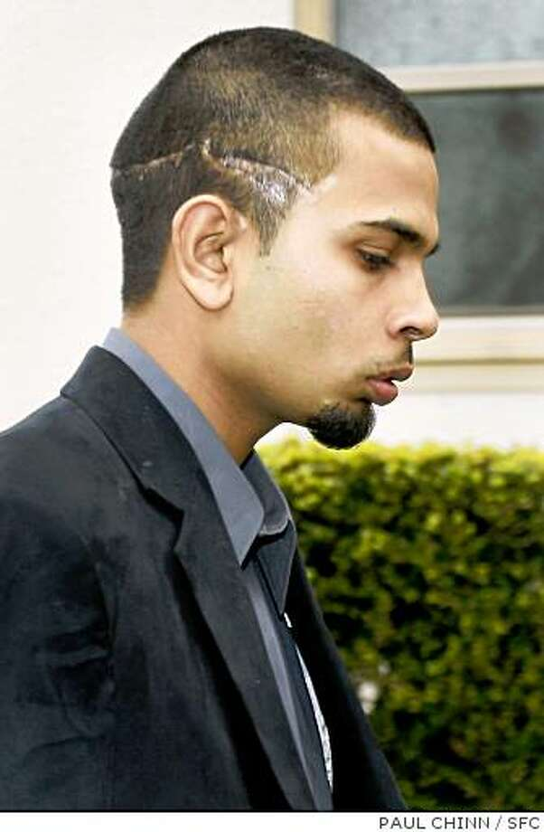 Wounds are clearly visible on Paul Dhaliwal, one of two brothers that survived the tiger attack, as he leaves the funeral service for 17-year-old Carlos Sousa, Jr. in San Jose, Calif. on Tuesday, Jan. 8, 2008. Sousa was killed in the Christmas Day tiger attack at the San Francisco Zoo.PAUL CHINN/The Chronicle**Paul Dhaliwal Photo: PAUL CHINN, SFC