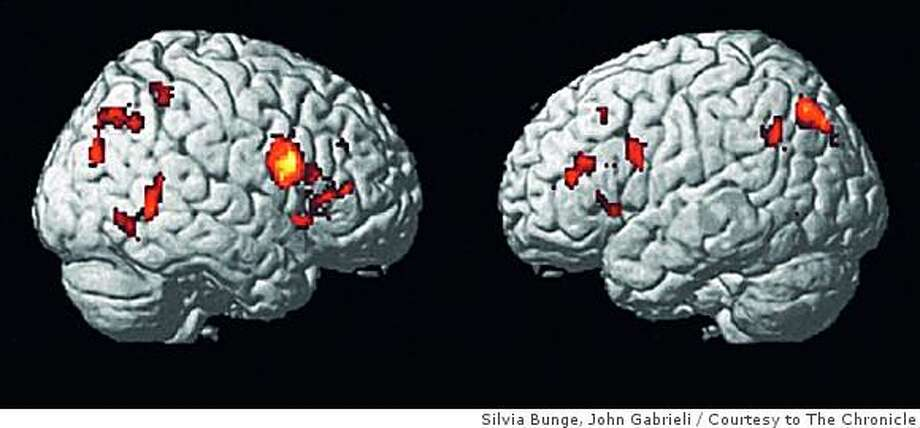 Taken from a 2002 paper, this fMRI shows the right ventrilateral pre-frontal cortex in adults, the region necessary for inhibiting responses. Photo: Silvia Bunge, John Gabrieli, Courtesy To The Chronicle