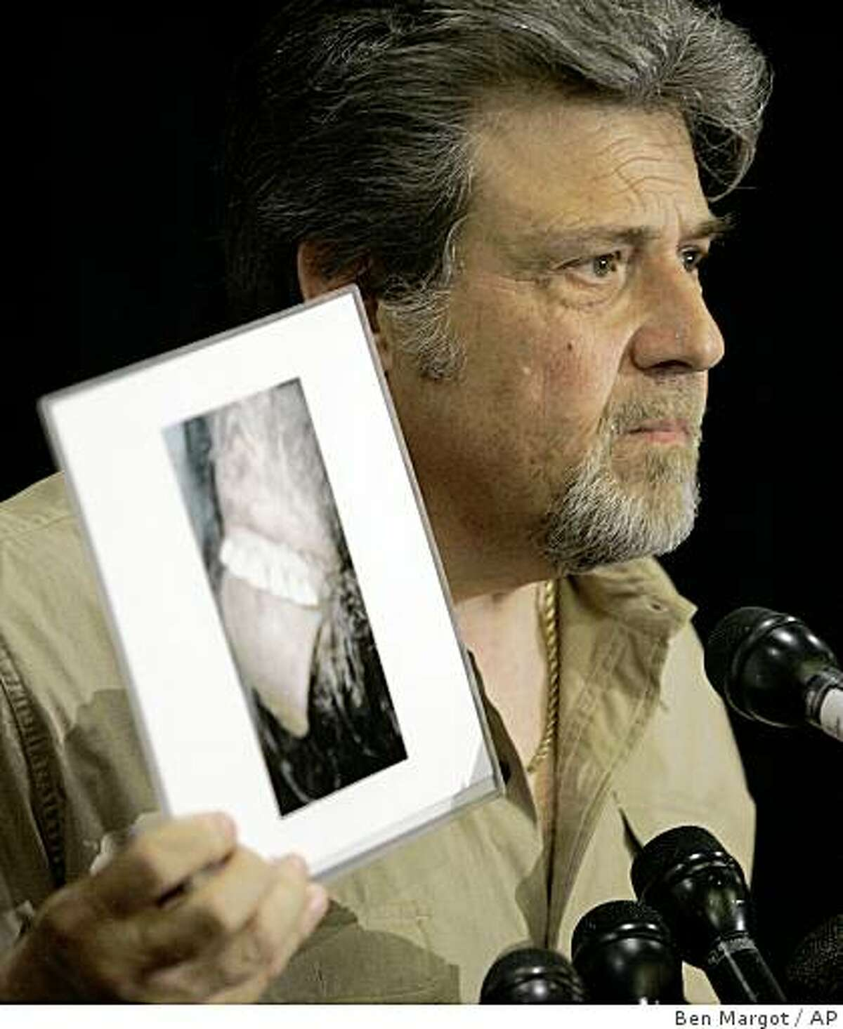 Bigfoot hunter Tom Biscardi holds a photo of what he claims to be the mouth and teeth of a deceased bigfoot or sasquatch creature during a news conference Friday, Aug. 15, 2008, in Palo Alto, Calif. (AP Photo/Ben Margot)