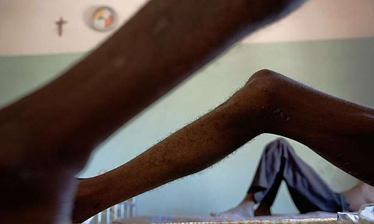 """""""Skinny"""" -- Infectious disease ward in Chalucuane, Mozambique"""