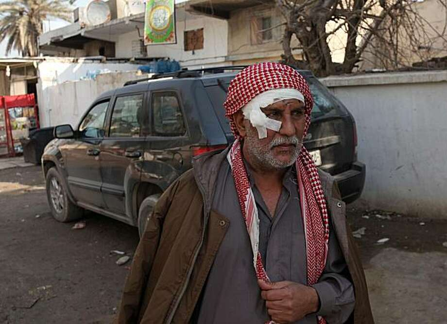 Ali Hussein is seen after being injured in a car bomb attack in Baghdad, Iraq, Tuesday, Dec. 15, 2009. A series of car bombs ripped through downtown Baghdad near the heavily fortified Green Zone. (AP Photo/Karim Kadim) Photo: Karim Kadim, AP
