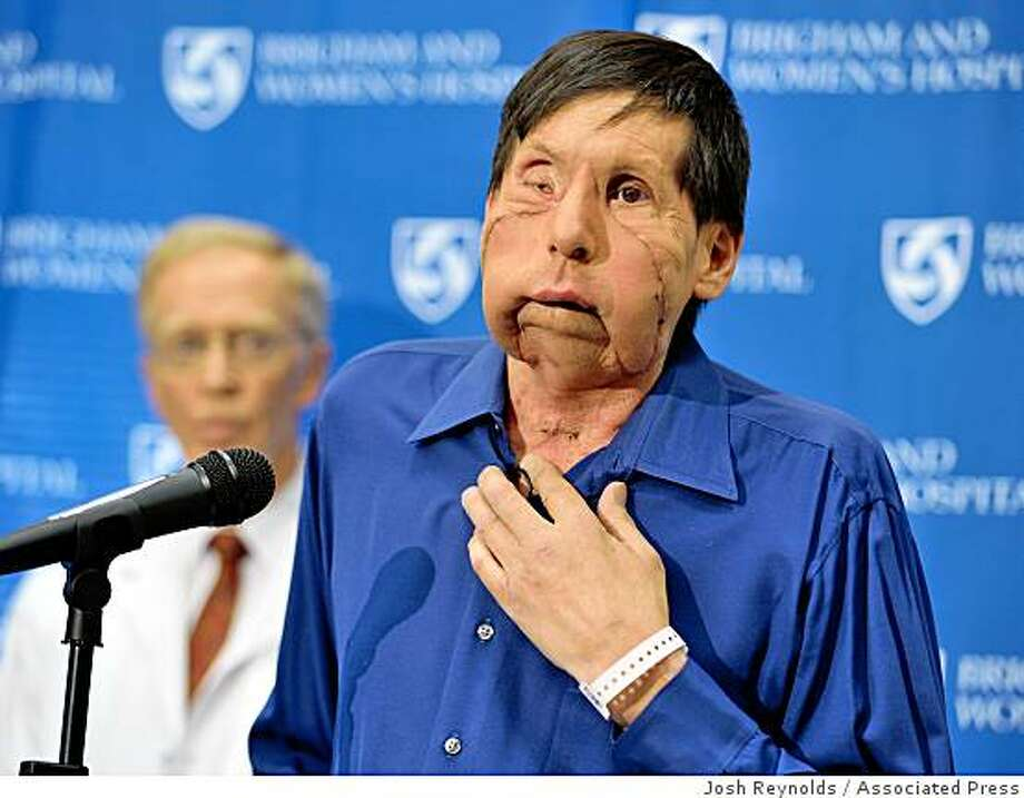 James Maki, 59, the recipient of the second face transplant in the United States, speaks to reporters during a news conference  at Brigham and Women's Hospital in Boston, Thursday, May, 21, 2009, as surgeon Dr. Elof Eriksson looks on. Maki, who underwent a 17-hour surgery on April 9, 2009, was disfigured in a Boston subway station accident in 2005. (AP Photo/Josh Reynolds) Photo: Josh Reynolds, Associated Press