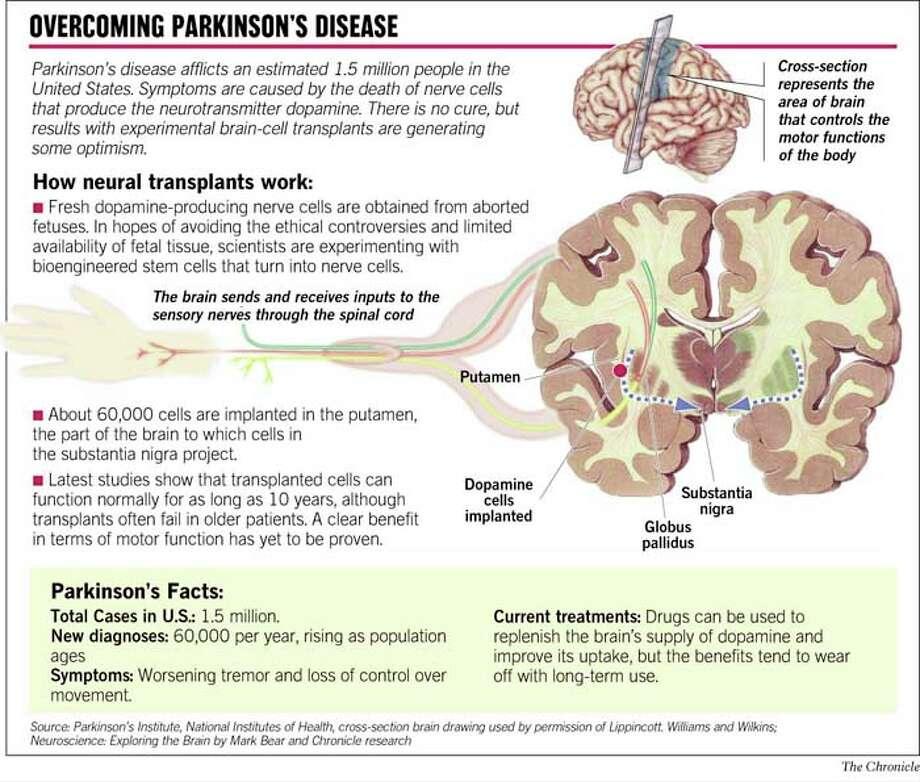 parkinsons answers parkinsons disease - 920×782