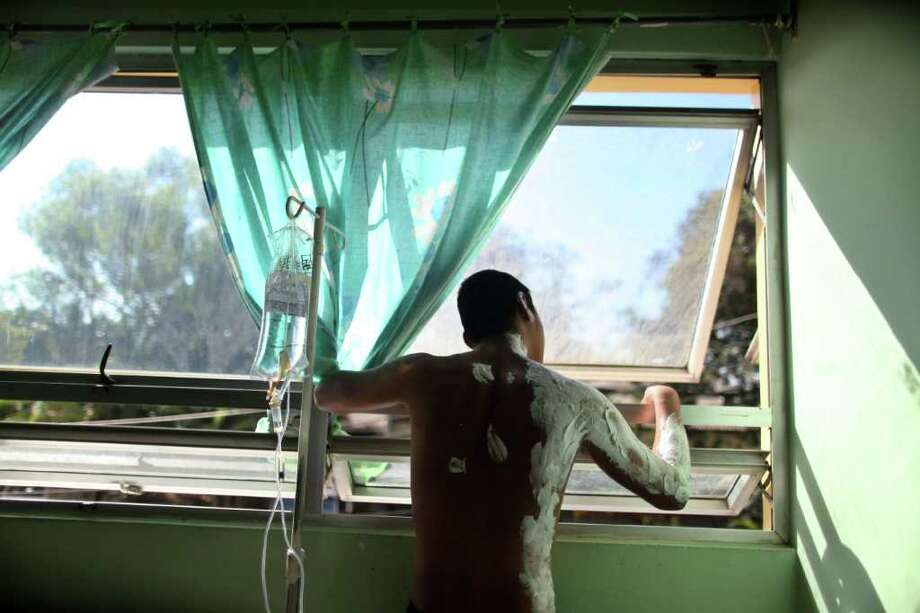 A prison inmate being treated for injuries sustained in a prison fire, looks out a hospital window in Comayagua, Honduras, Friday Feb. 17, 2012. Photo: Estbean Felix, Associated Press / AP
