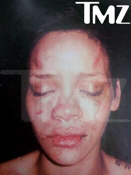 "This photo of Rihanna was, according to TMZ, ""taken after Chris Brown allegedly beat her."" Photo: HO / TMZ"