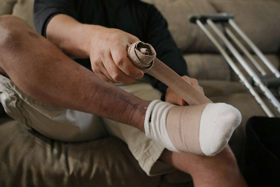 Turning cartilage to bone could replace grafts - SFGate