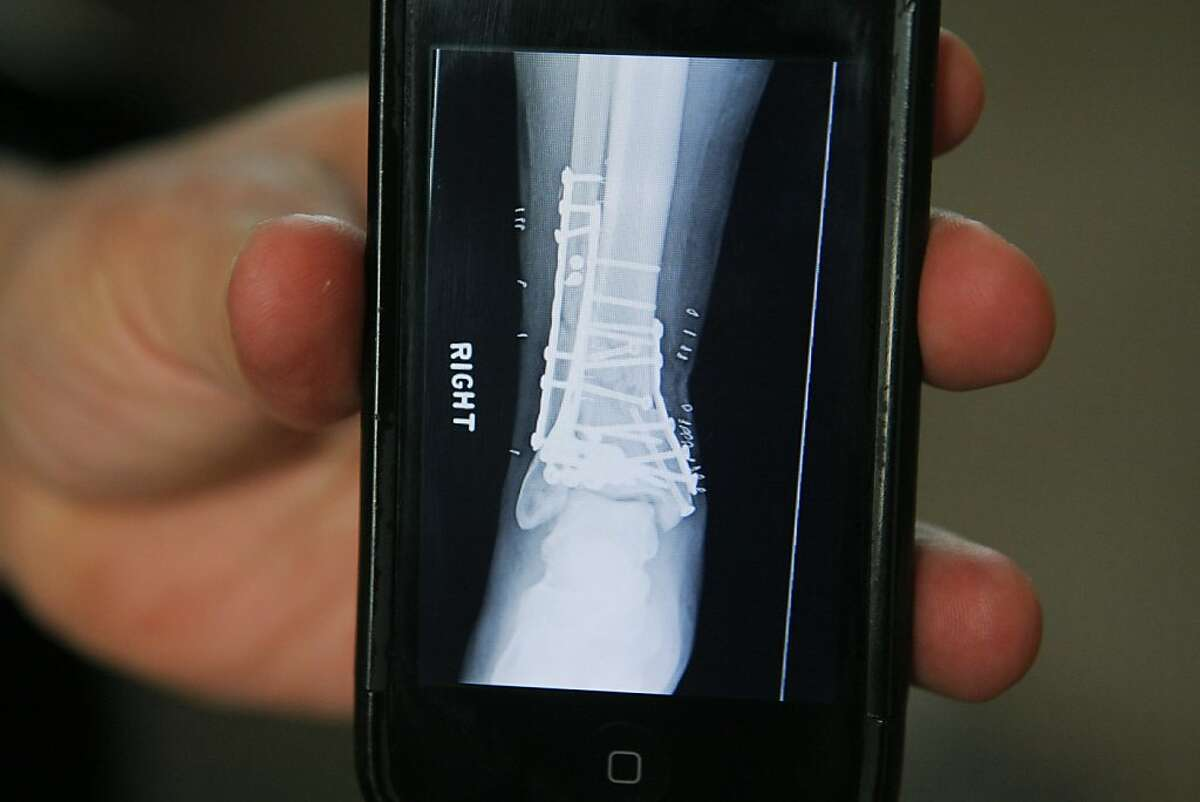 Eric Navarro, a San Jose police officer, shows an x-ray of his fractured ankle from his home in Gilroy on March, 5, 2012. Navarro is being treated with a new technique that builds bone from cartilage developed by UCSF scientists.