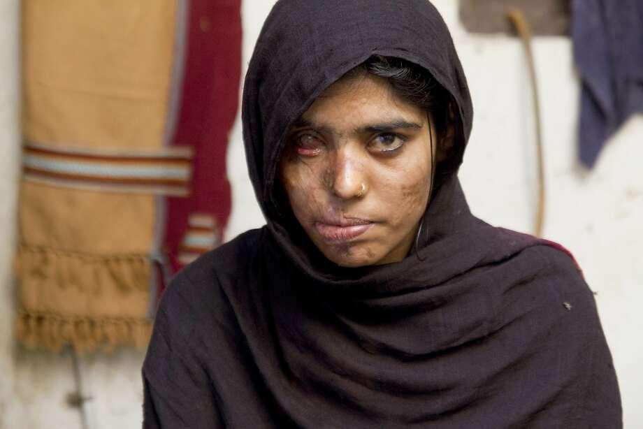 SAVING FACE: Zainub. Photo: Asad Faruqi, HBO
