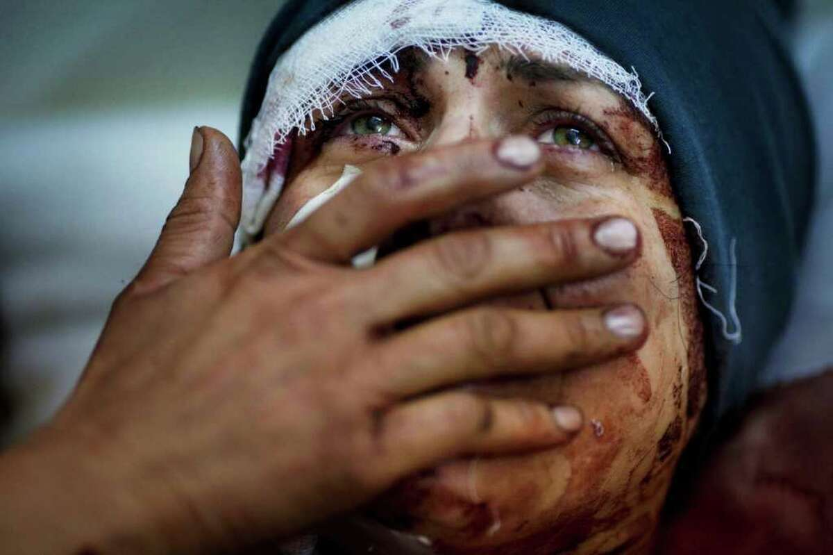 A Syrian named Aida cries as she recovers from severe injuries after the army shelled her house in Idlib, in north Syria. Her husband two of her children were killed in the attack about 95 miles north of Homs. The photo is from Saturday.