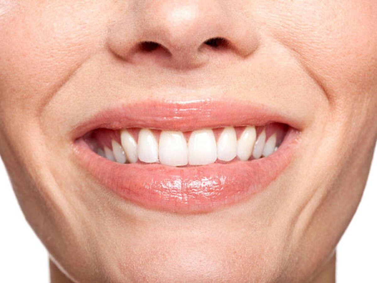 Receding gums: +10 YEARS
