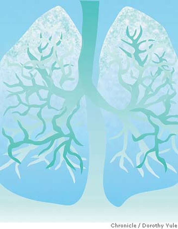 Wallpaper illustration for Prescriptives column for 9/23/07 issue of Sunday magazine on aging lungs Photo: Dorothy Yule