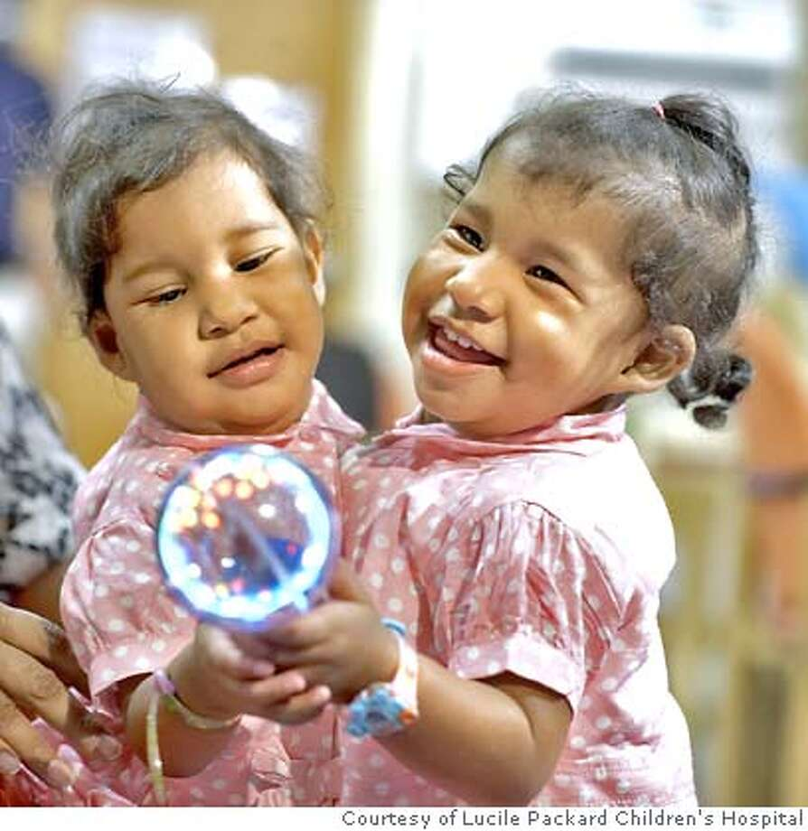 Maria Elizabeth Arias holds her 2-year old conjoined twins, Yurelia (left) and Fiorella Rocha-Arias, at Lucile Packard Children's Hospital where they are to be separated.  COURTESY LUCILE PACKARD CHILDREN'S HOSPITAL Photo: COURTESY LUCILE PACKARD CHILDREN
