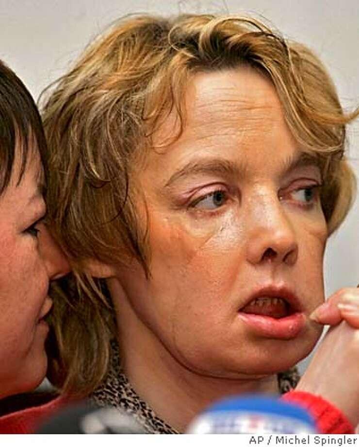 women-big-facial-partial-transplant-big